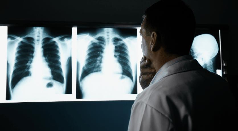 Prevalencia factores de riesgo y subdiagnostico de asma-8-min